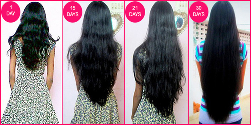 Diy Home Remedy For Quick Hair Growth You I