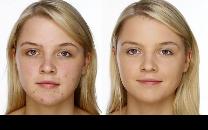 Hyper pigmentation And Skin Blemishes Secrets