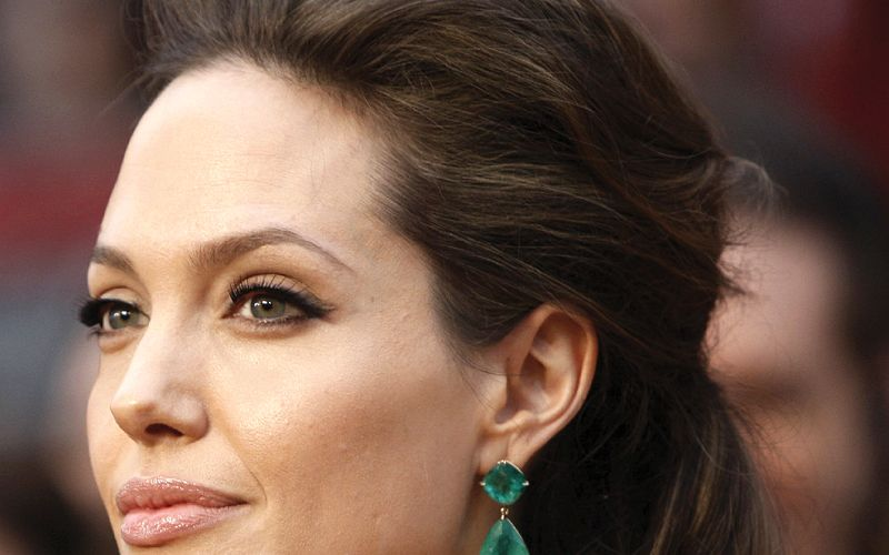 Surgical-correction-of-the-jawline-Angelina